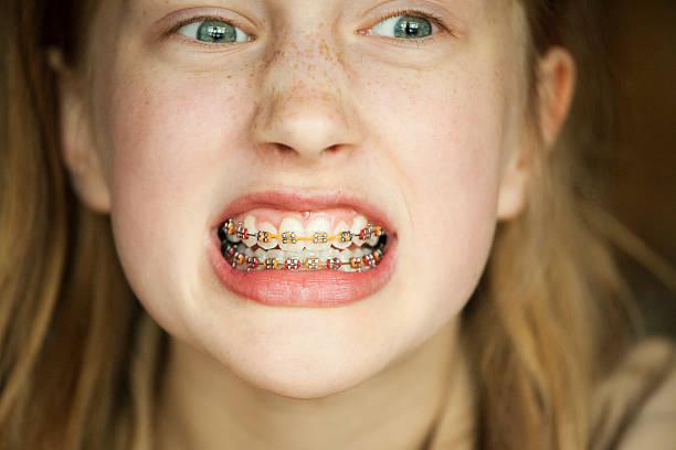 จัดฟันสี