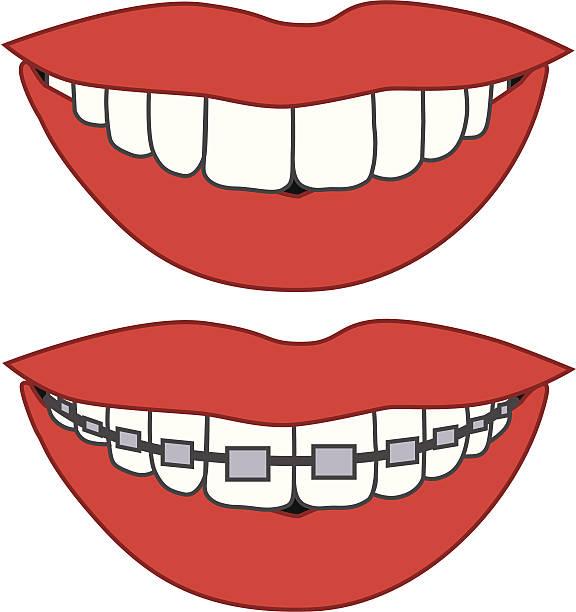 ดัดฟันช่วยอะไรบ้าง