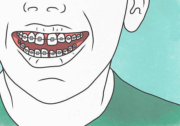 ดัดฟันราคาเท่าไหร่