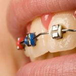 จัดฟันครั้งแรกต้องเตรียมเงินเท่าไหร่ ถึงจะเรียกว่าเซฟสุดๆ ขอแนะนำ #7คลินิกดัดฟันที่แรกเข้าราคาดี๊ดีย์