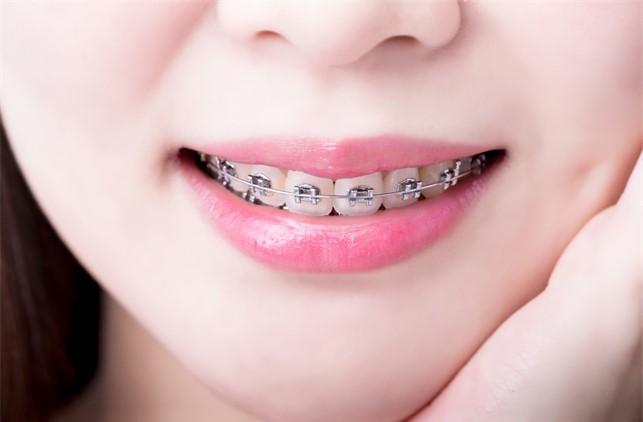 มาฟังทางนี้ !! ชาวราชบุรี คลินิกจัดฟัน ทีไหนดี ราคาสบายกระเป๋า พร้อมเเนะนำ #5 คลินิกจัดฟันแบบเด็ดๆ