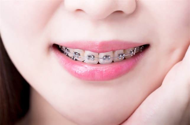 คลินิกดีบอกต่อออ!! จัดฟันที่ไหนปังที่สุดด!!! ขอเเนะนำ  #5คลินิกจัดฟันสวย ใกล้BTS เดินทางสะดวกเเน่นอน!!