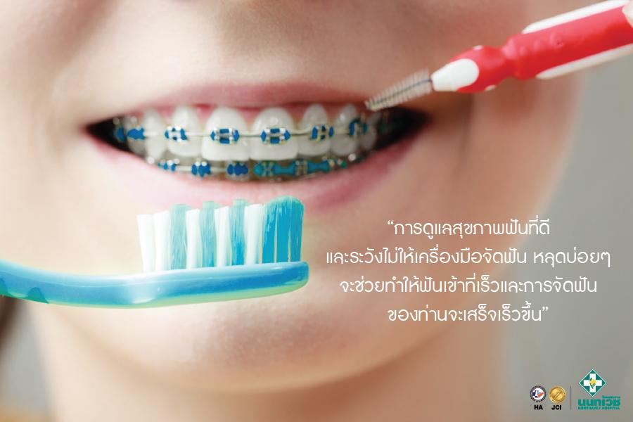 จัด ฟัน สี ดํา