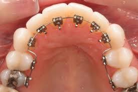 """มาทำความรู้จักกับ """"จัดฟันด้านใน""""กันค่ะ  เคยสงสัยไหมคะว่ามีการจัดฟันข้างในด้วยหรอ??  ไปหาคำตอบกันนน!!!"""