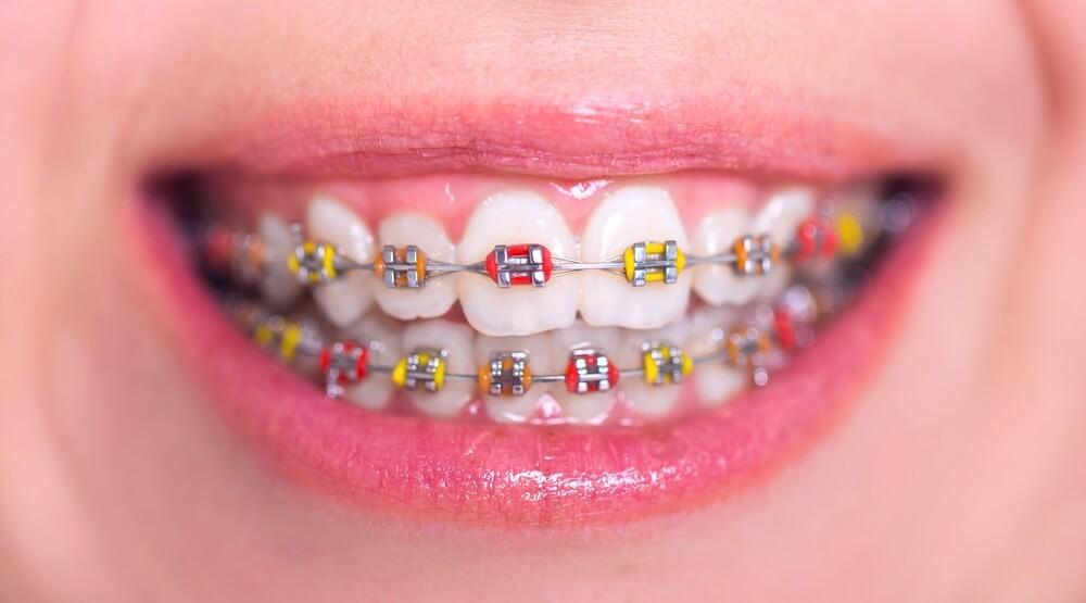 จัดฟัน ในบางใหญ่ที่ไหนดี ???  มาดูกันเลย #คลินิกจัดฟันในบางใหญ่  คำเเนะนำจากผู้มีประสบการณ์มากมายมีที่ไหนเด็ดบ้าง มาดูกันเลย