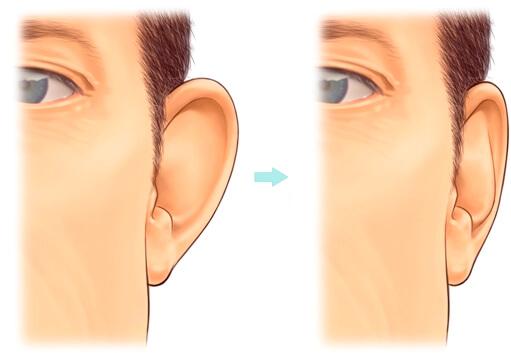 ศัลยกรรม หู กาง