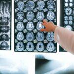 แนะนำ #5 โรงพยาบาลศัลยกรรมประสาท (Neuro Surgery)