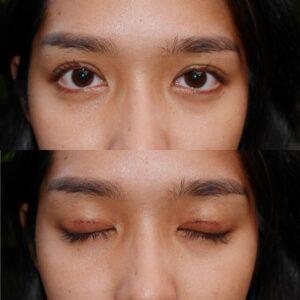 ทํา ตา สอง ชั้น pantip