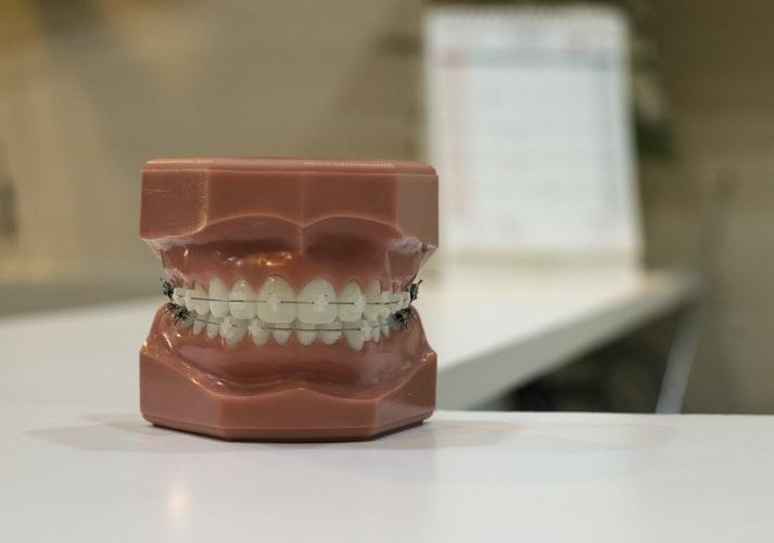 จัดฟันอุบล