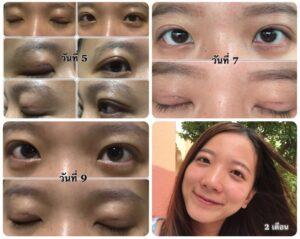 ทํา ตา สอง ชั้น ที่ไหน ดี pantip 2019