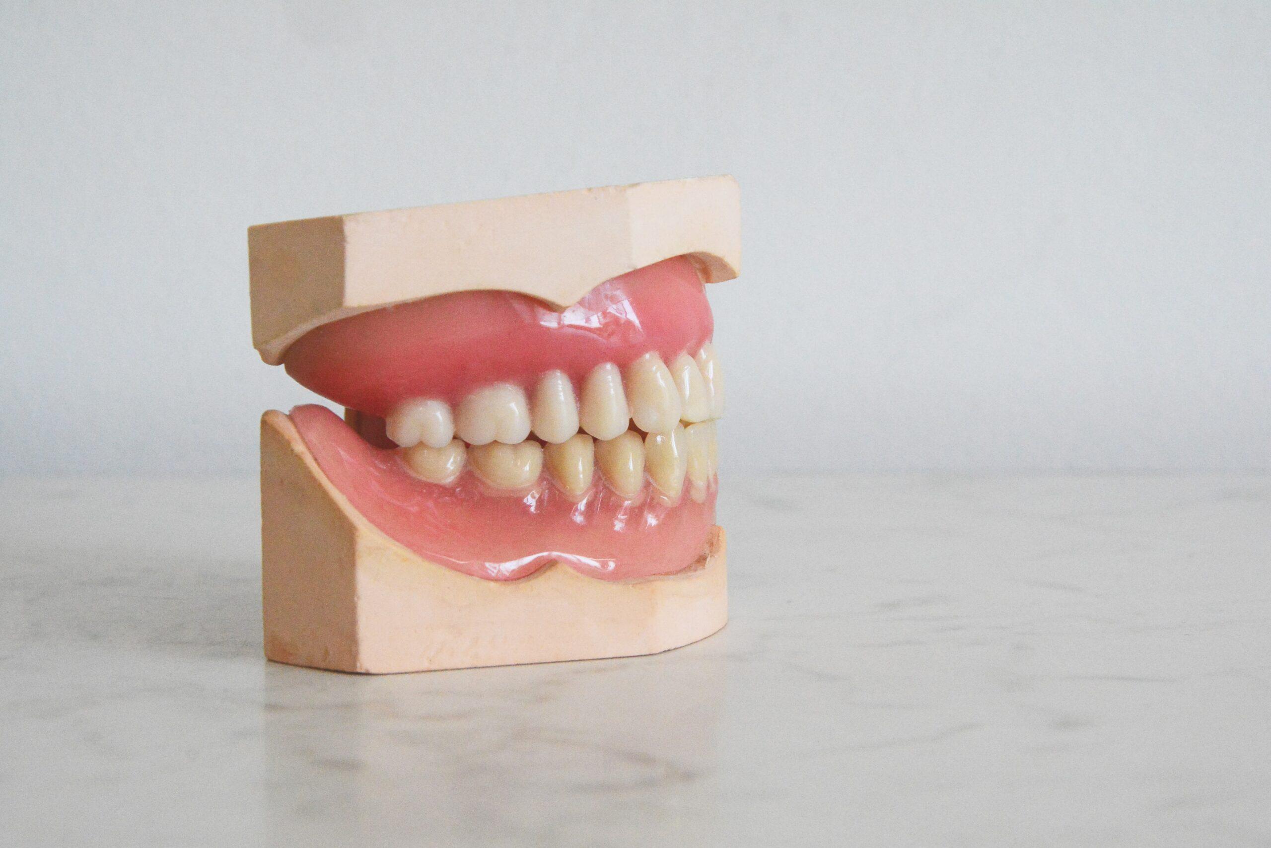ดัดฟันแบบไม่ถอน