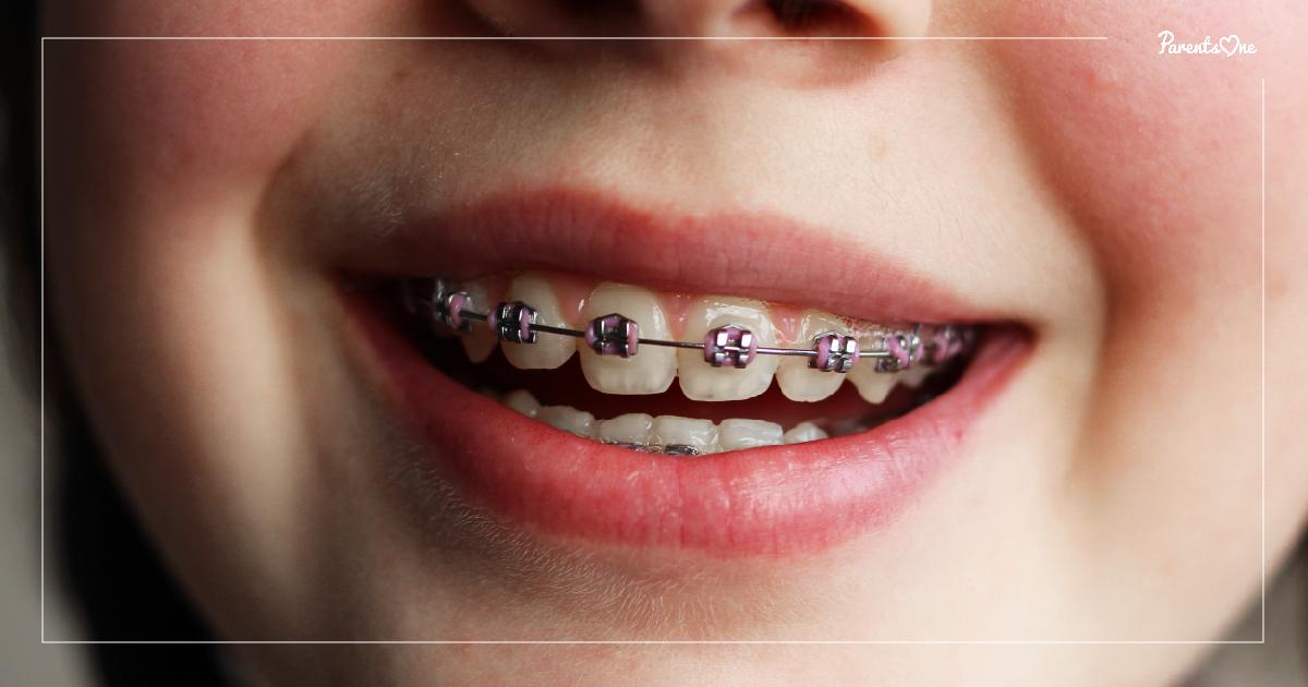 จัด ฟัน ปวด ฟัน