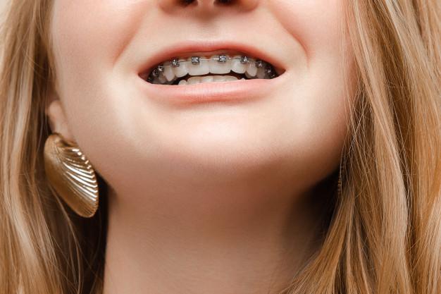 จัด ฟัน งุ้ม