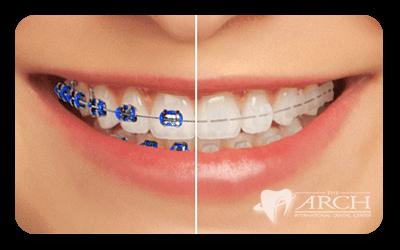 จัดฟันแบบธรรมดา vs. จัดฟันแบบดามอน แบบไหนเริดกว่ากัน พร้อม #5พิกัดคลินิกจัดฟันพระราม2 จัดแล้วปัง!!!! ไม่พังแน่นอน!!