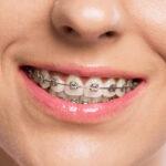 ชาวลำพูน มาฟังทางนี้ ใครที่กำลังเจอปัญหาเรื่องฟันไม่สวย เเนะนำเลยให้จัดฟัน  พาส่อง #5 คลินิกจัดฟันในลำพูนที่มีรีวิวเยอะมากก !! มาดูกันเลยยย
