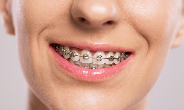 จัด ฟัน ลํา พูน