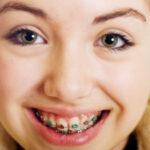 อันตรายหรือไม่!! จัดฟันเเล้วฟันโยกต้องทำอย่างไร!! ขอเเนะนำ#5คลินิกจัดฟันในเมืองกรุง ที่มีคุณหมอเชี่ยวชาญเเละราคาไม่เเพง!!!