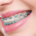 ตอบให้เคลียร์ จัดฟันครั้งเเรกเจ็บมากหรือเปล่า??!! เเละขอเเนะนำ#5คลินิกจัดฟันที่ชาวสงขลาต้องรู้จัก เพราะฟันสวย รอไม่ได้!!