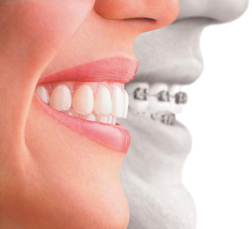 จัดฟันผ่าตัดขากรรไกร