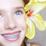 หนุ่มสาวมหาลัยย่านลาดกระบังต้องรู้ จัดฟันแบบไหนดีที่สุด!! ขอเเนะนำ#5คลินิกจัดฟัน ราคาสบายกระเป๋า ย่านลาดกระบัง!!!