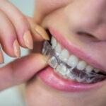 ดัดฟัน มีแบบถอดได้นะรู้ยัง!! หมดปัญหาสำหรับคนไม่อยากติดเหล็ก!! ขอแนะนำ #6 ที่ดัดฟันใสแบบถอดได้ ล้ำกว่านี้ไม่มีอีกแล้ว!!