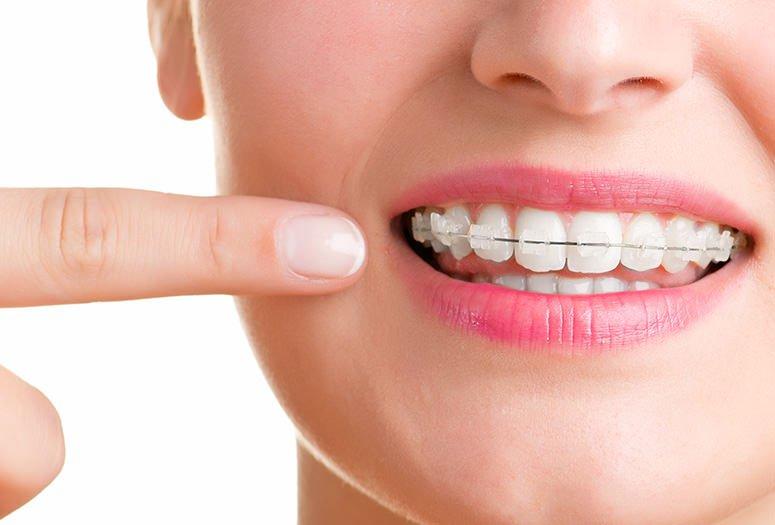 จัด ฟัน พระราม 2